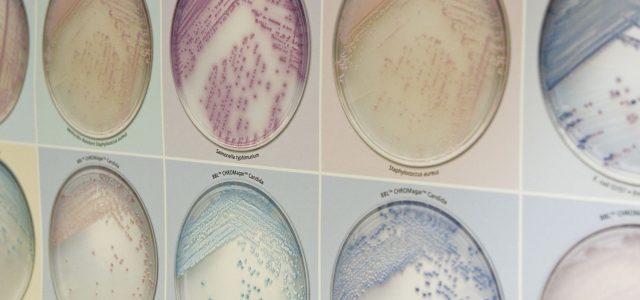 Aktuell 29 Coronainfektionen im Märkischen Kreis