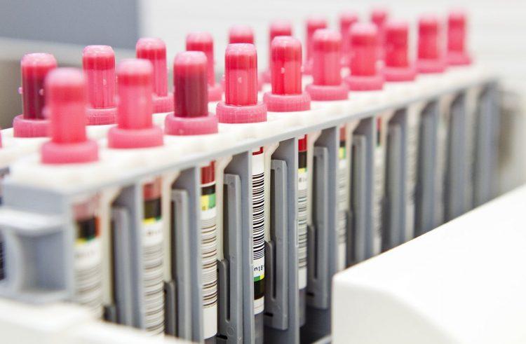 18 Neuinfektionen mit dem Coronavirus